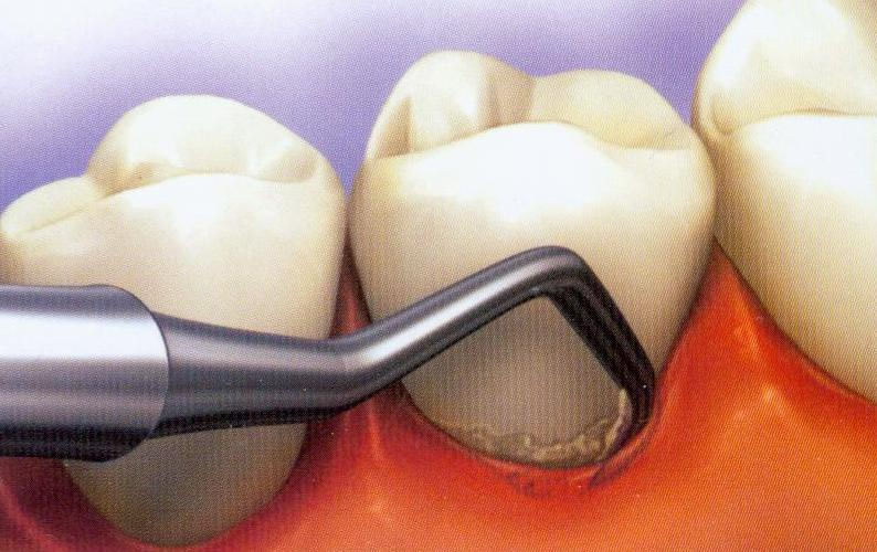 periodontal-scaling